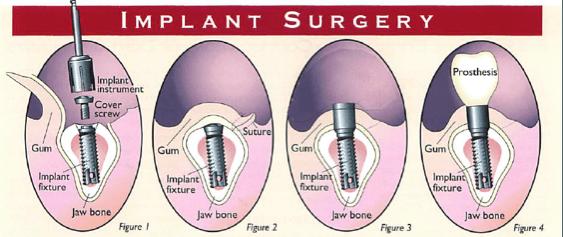 Diagram of dental implant surgery