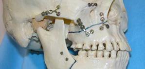 Facial Trauma Surgery