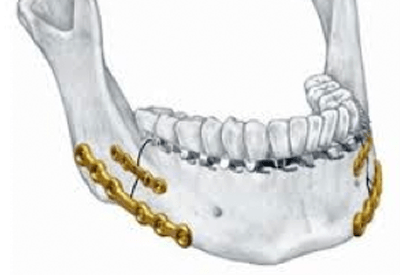Diagram of fractured jaw