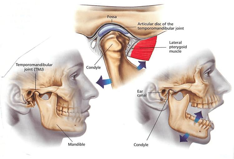 Diagram showing how TMJ symptoms occur